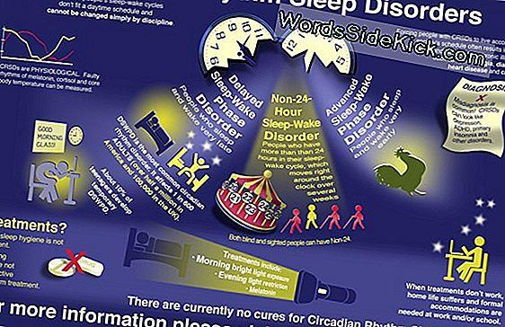 Big Headaches: Feiten Over Migraine (Infographic)