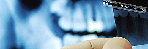 Tandheelkundige Röntgenstralen Gekoppeld Aan Verhoogd Hersentumorrisico